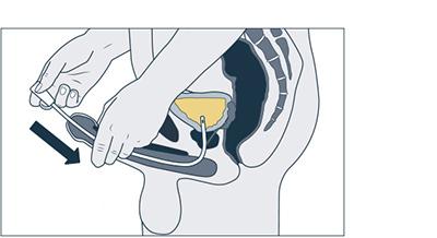 Harnröhrenstimulation
